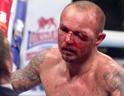 The Heart Of A Lion : Is There A Way Back For Kevin Mitchell?