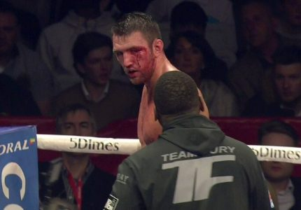 Hughie Fury retains unbeaten record in dull fight with Fred Kassi