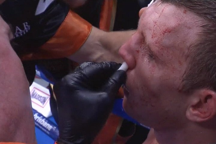 "Jeff Horn - The anger, the shock and the bewilderment caused by Saturday night's monstrous upset decision win scored by Jeff Horn over Manny Pacquiao is still being felt, and it doesn't look like going away any time soon. Amid the cries of robbery, corruption and incompetence, is the tired old, ""boxing is finished"" claim."