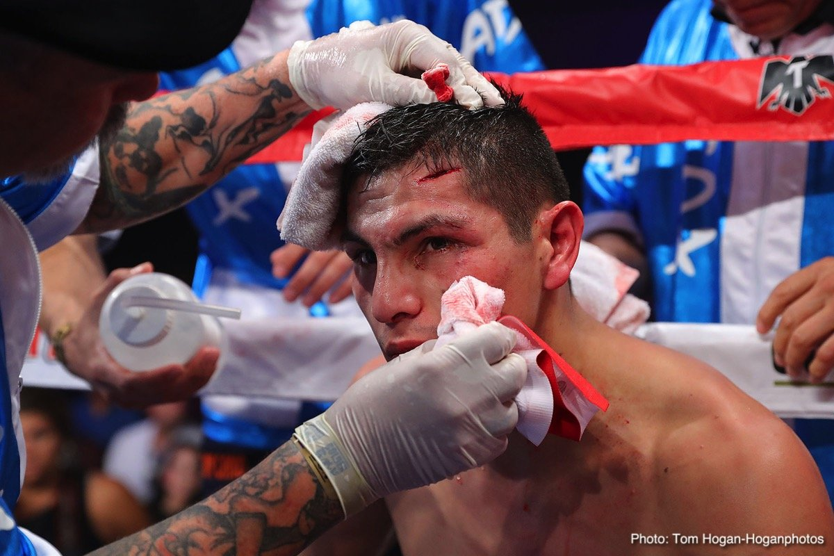 """Pablo Cesar Cano - Mexican warrior Pablo """"El Demoledor"""" Cesar Cano (31-7-1, 21 KOs) defeated Kazakhstani boxer Ruslan Madiev (12-1, 5 KOs) via fifth-round technical decision in the scheduled 10-round main event of the Sept. 13 edition of Golden Boy Boxing on ESPN at The Joint at the Hard Rock Hotel & Casino, Las Vegas. After a vicious head-butt worsened nasty cut on the left side of Cano's forehead, the fight was stopped at the end of the fifth round. Cano was awarded the technical decision victory with three scores of 49-46."""