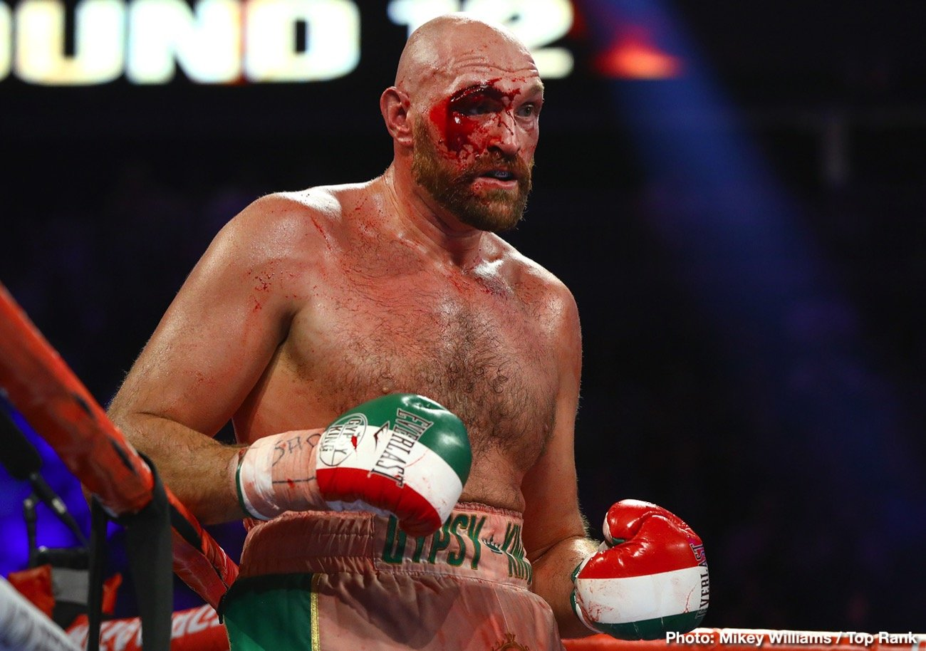 Otto Wallin - Terence Crawford implies that lineal heavyweight champion Tyson Fury (29-0-1, 20 KOs) was given preferential treatment after suffering bad cuts to his right eye in his fight with Otto Wallin last Saturday night on ESPN+ at the T-Mobile Arena in Las Vegas, Nevada. Crawford says if it had been somebody else that suffered a similar cut as Fury's, the fight would have been halted.