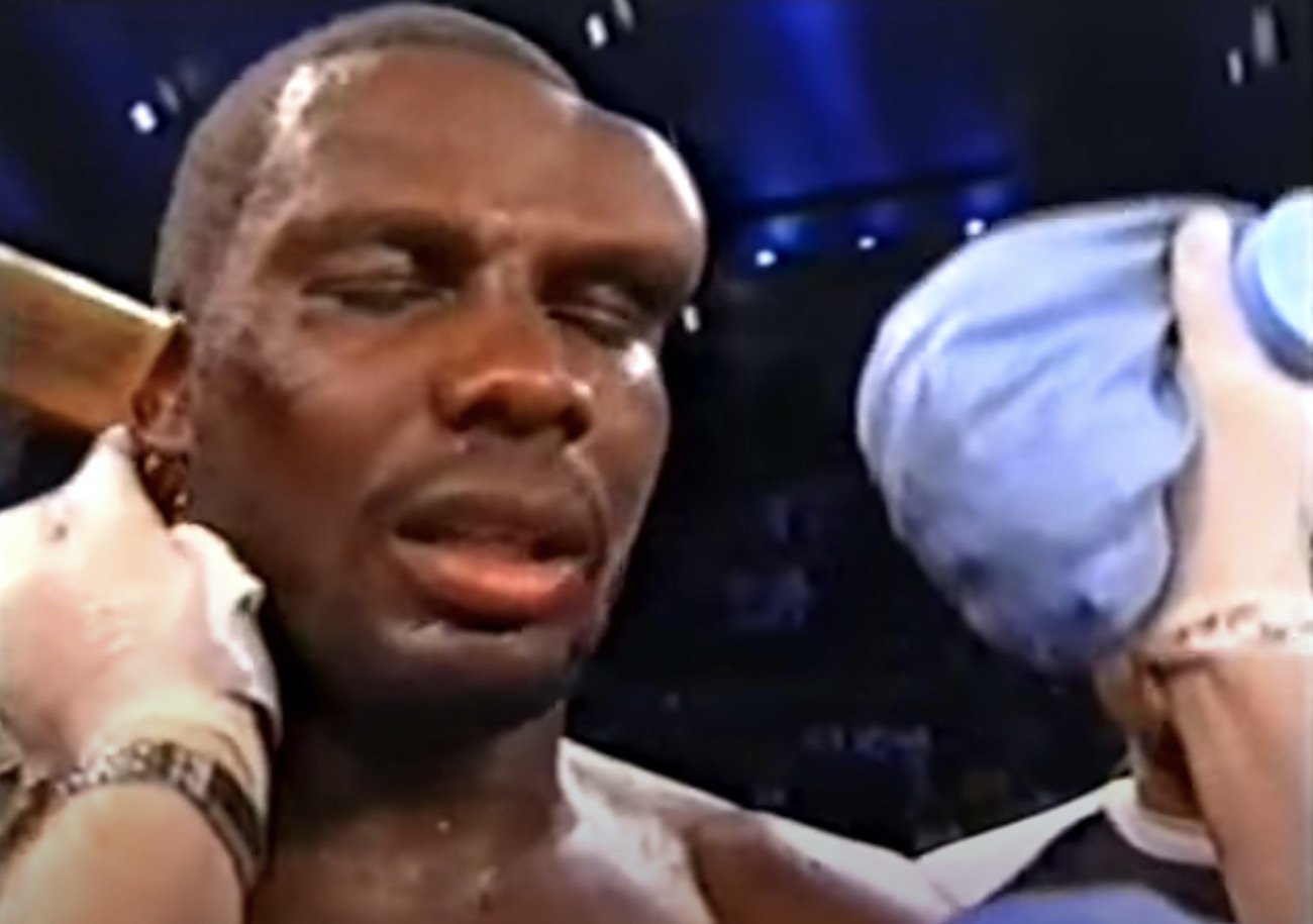 "Evander Holyfield - ""I'll wear a helmet next time,"" Hasim Rahman, hideously disfigured after his controversial loss to Evander Holyfield."