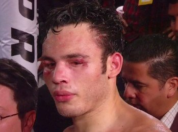 Julio Cesar Chavez Jr. - Julio Cesar Chavez Jr was once a top contender, and even a good champion. In 2011, he won his 43rd contest and captured the WBC world middleweight title from the previously unbeaten Sebastian Zbik. He would then make 3 consecutive defences before taking on Sergio Martinez, and losing.