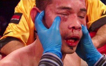 Donaire vs. Darchinyan Nonito Donaire Vic Darchinyan Boxing News