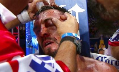 Guerrero vs. Kamegai Robert Guerrero Boxing News Boxing Results